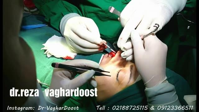 عمل زیبای بینی توسط دکتر وقردوست