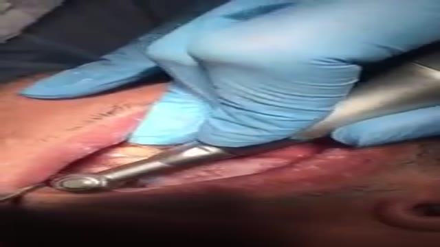جرم گیری دندان مرحله اول