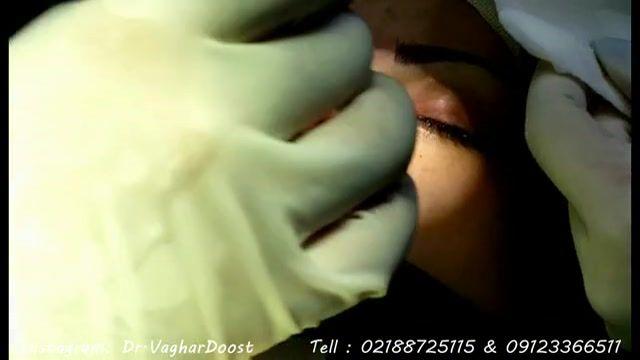 جراحی بینی توسط دکتر وقردوست فوق تخصصی جراحی زیبایی