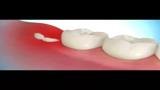روش های کشیدن انواع دندان عقل پیدا، نیمه پنهان و پنهان