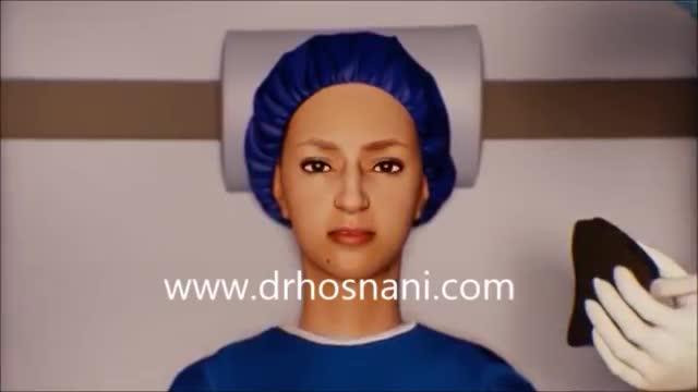 فیلم انیمیشن جراحی بینی دکتر حسنانی