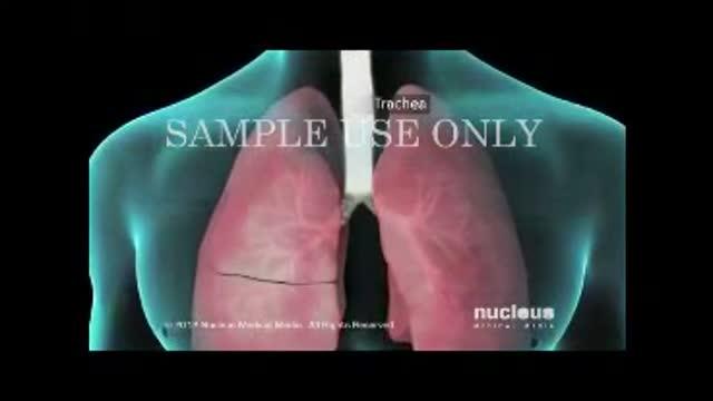 همه چیز درباره آسم یا تنگی نفس و دلایل ایجاد آن