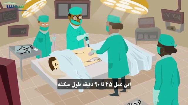 اهدای سلولهای بنیادی و مغز استخوان