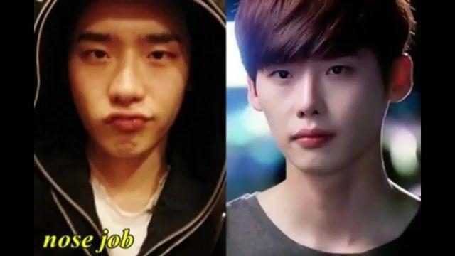 عکس بازیگران کره ای قبل از عمل و بعد از عمل شامل مردان و زنان عجب صورتایه زیبایی چهارم