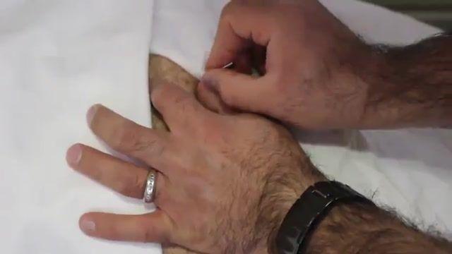 درمان درد باسن و لگن با درای نیدلینگ در فیزیوتراپی آرامش سعادت آباد