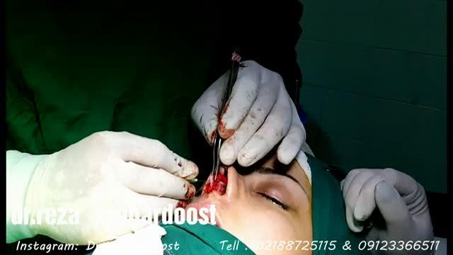 فیلم جراحی زیبای بینی توسط دکتر وقردوست فوق تخصص