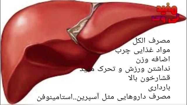 علائم کبد چرب fatty liver