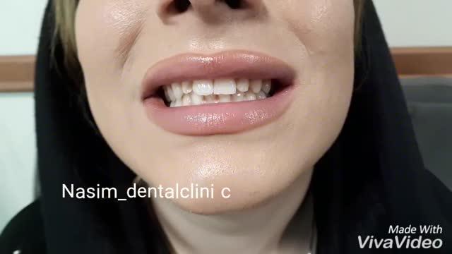 ارتودنسی لمینت ایمپلنت ونیرکامپوزیت اصلاح طرح لبخند کاشت دندان دندانپزشکی زیبایی