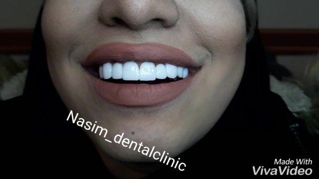 ارتودنسی لمینت ایمپلنت ونیرکامپوزیت اصلاح طرح لبخند دندانپزشکی زیبایی